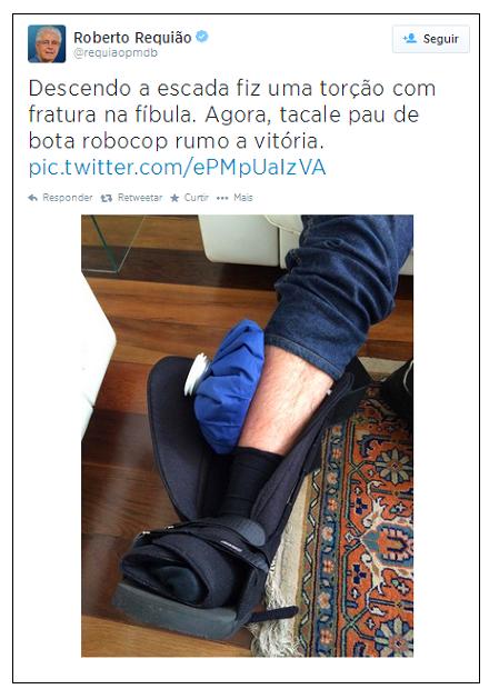 requião-perna
